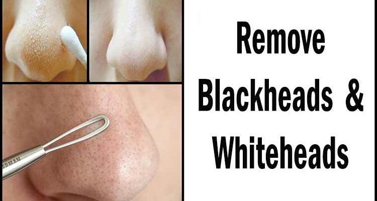 How-to-remove-blackheads-and-whiteheads